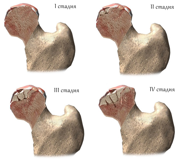 Асептический некроз головки бедренной кости.
