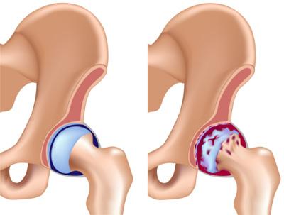 Лечение коксартроза - лечение артроза тазобедренного сустава.