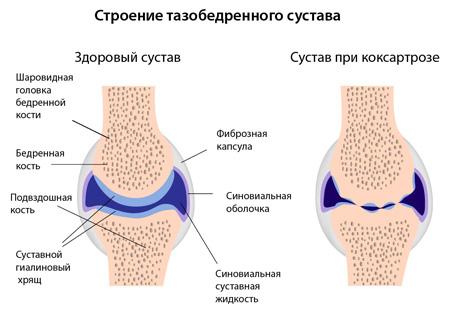 Коксартроз - артроз тазобедренного сустава. Степени и симптомы ...